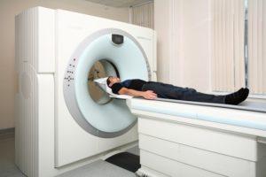 Геморрагический инсульт головного мозга причины симптомы и лечение