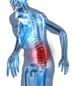 Спинальный инсульт причины симптомы и лечение