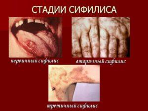 Нейросифилис симптомы и лечение