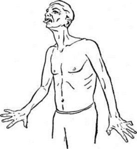 Хорея Гентингтона симптомы и лечение способы диагностики
