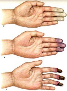 Вибрационная болезнь симптомы лечение и профилактика