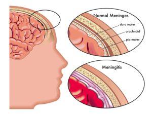 Менингит симптомы у взрослых
