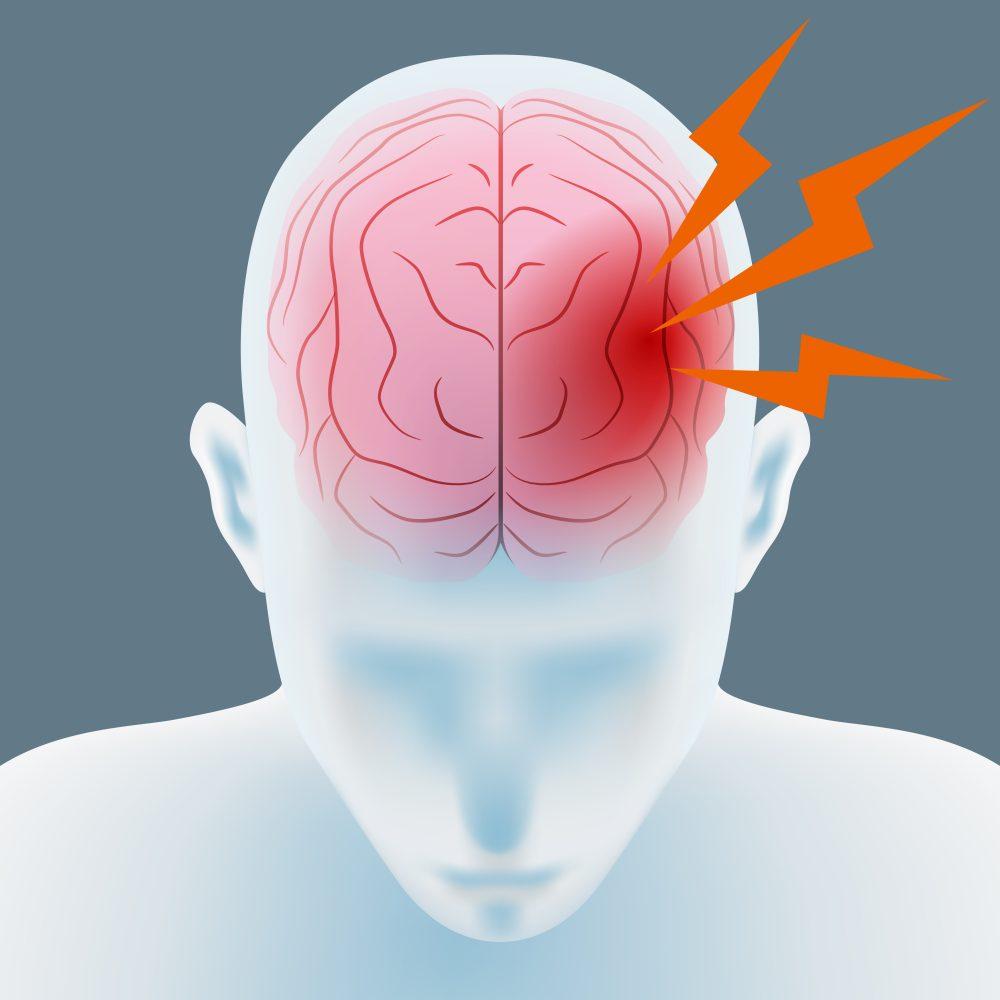 Геморрагический инсульт симптомы первые признаки