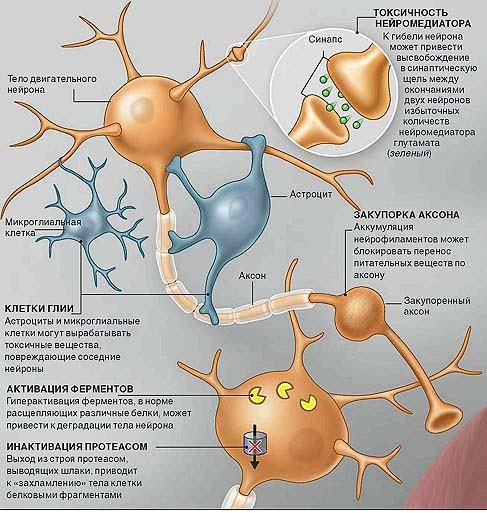 Боковой амиотрофический склероз причины возникновения и механизм развития