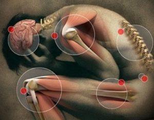 Рассеянный склероз первые признаки