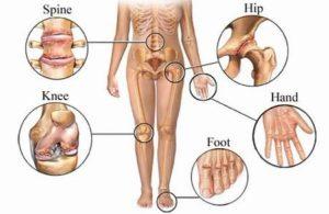 Клещевой боррелиоз симптомы принципы диагностики и лечения последствия