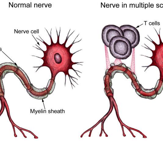 Рассеянный склероз симптомы и лечение