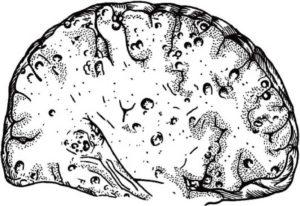 Нейроцистицеркоз причины симптомы принципы диагностики и лечения