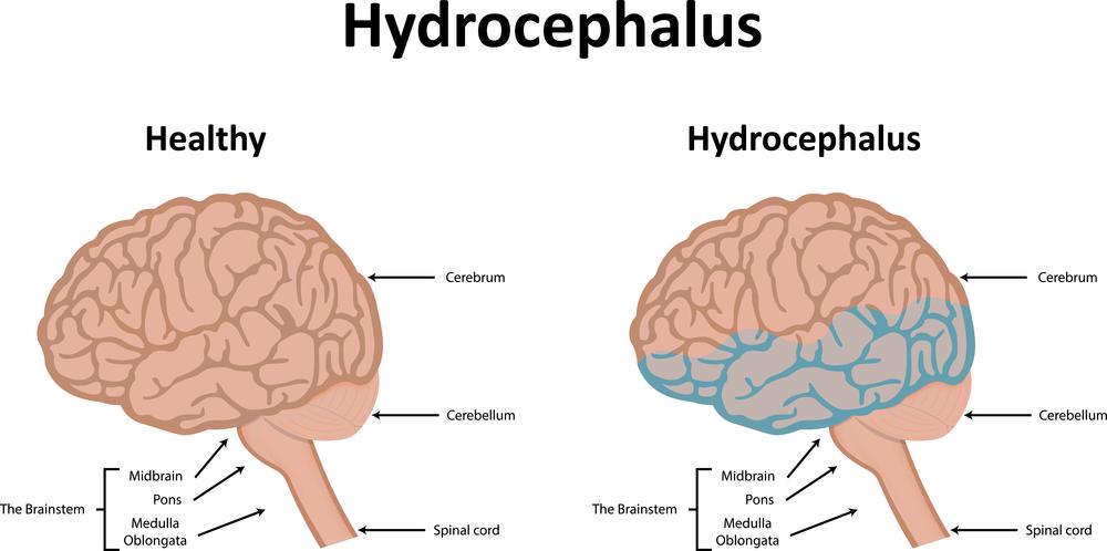 Как лечить гидроцефалию головного мозга у взрослых