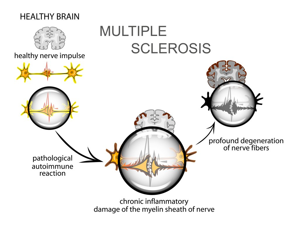 Симптомы рассеянного склероза у мужчин