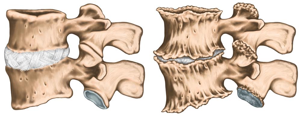 Острый шейный остеохондроз симптомы