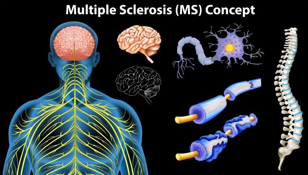 Рассеянный склероз симптомы у женщин, причины возникновения