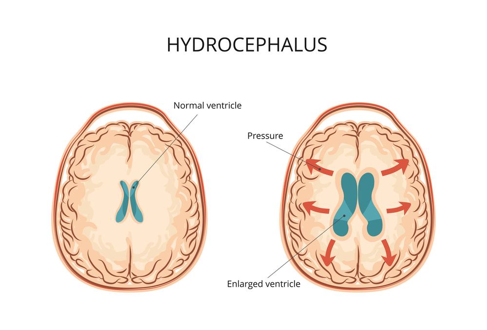 Гидроцефалия головного мозга у детей лечение
