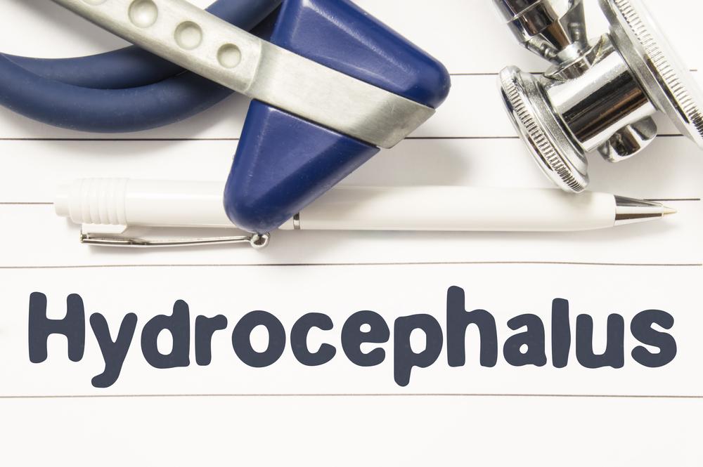Нормотензивная гидроцефалия у взрослых