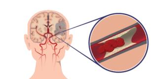 Ишемический инсульт симптомы и лечение