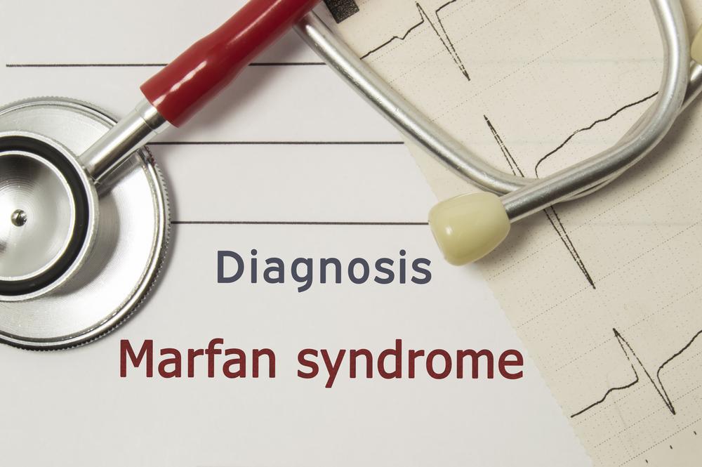 Синдром Марфана - причины, признаки, лечение