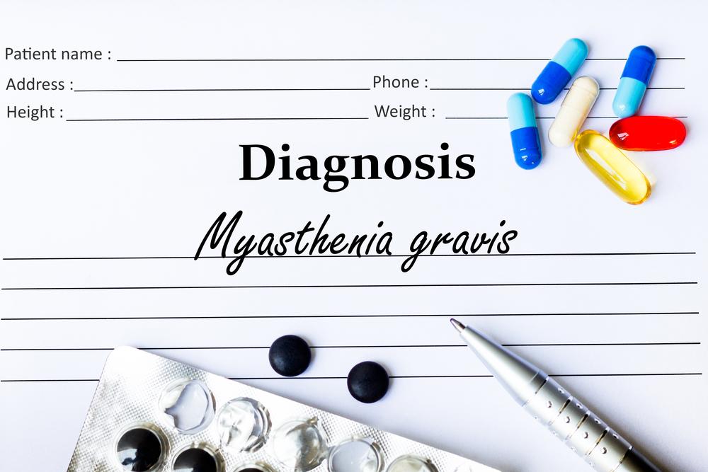 Миастения — причины, лечение, симптомы, диагностика