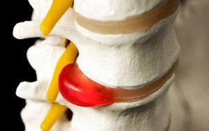 Грыжа межпозвонкового диска симптомы диагностика и лечение