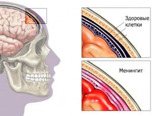 Серозный менингит у взрослых симптомы и лечение