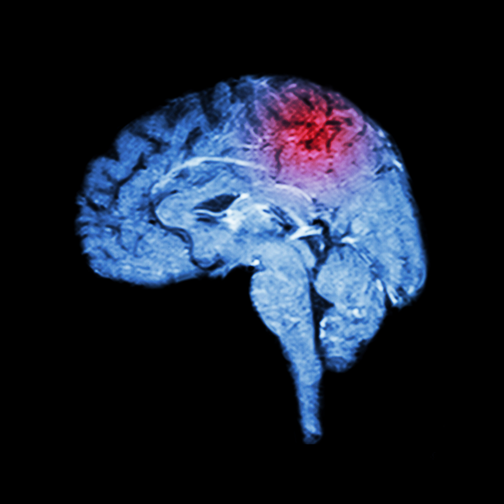 Какие признаки при инсульте у человека