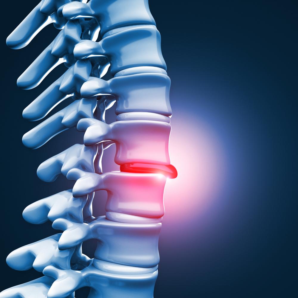 Грыжа межпозвоночного диска. Симптомы и лечение межпозвоночной грыжи