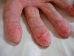 Что такое факоматозы
