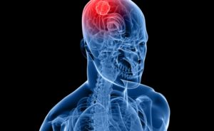 Болезнь Реклингхаузена причины симптомы и лечение