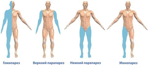Опухоль спинного мозга симптомы диагностика лечение