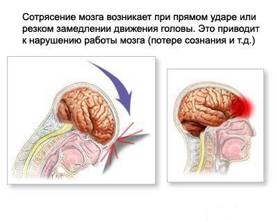 Сотрясение мозга симптомы лечение