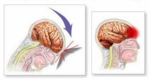 Ушиб головного мозга симптомы лечение последствия