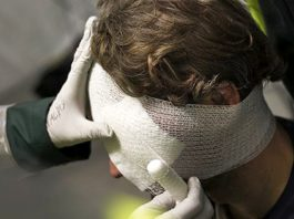 Черепно-мозговая травма первая помощь