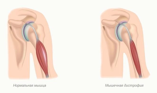 мышечная дистрофия Дюшенна симптомы и лечение