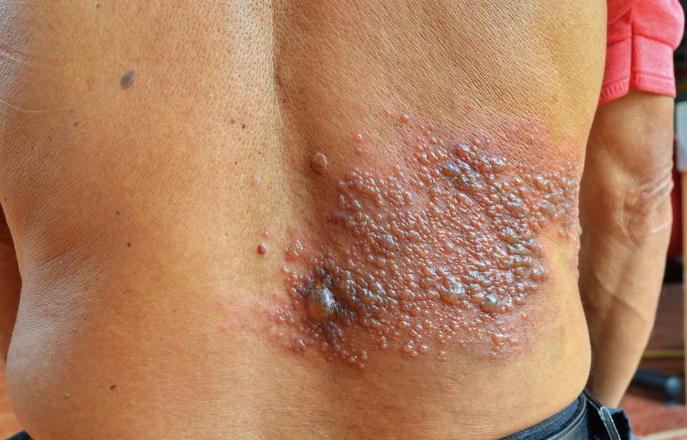 Опоясывающий лишай (герпес Зостер) у взрослых: симптомы и лечение. Как и чем лечить опоясывающий лишай