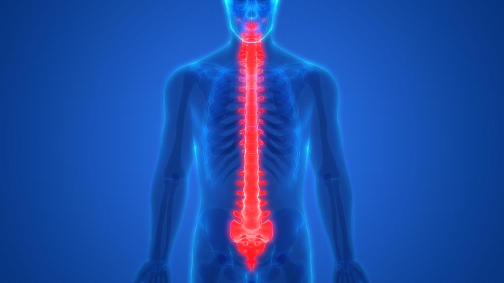 Опухоль спинного мозга симптомы