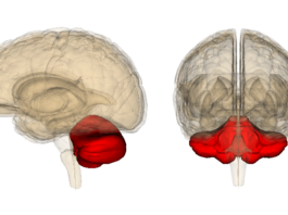 Опухоль мозжечка симптомы диагностика и лечение