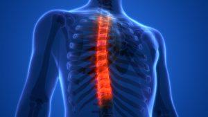 остеохондроз нижнегрудного отдела позвоночника старинка