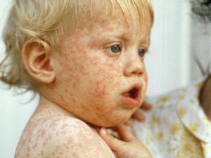 Корь симптомы и лечение у детей