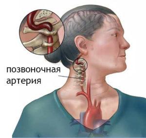 Синдром позвоночной артерии симптомы и лечение