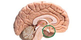Синдром Шихана симптомы и лечение