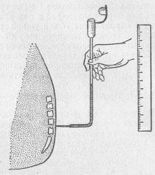 Спинномозговая пункция показания противопоказания техника проведения