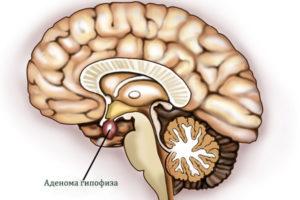 Аденома гипофиза симптомы и лечение