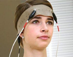 Реоэнцефалография сосудов головного мозга