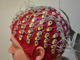 Электроэнцефалография головного мозга методика проведения