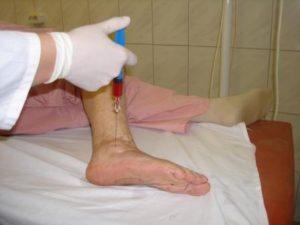 Эритромелалгия причины симптомы лечение
