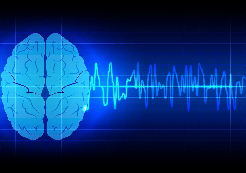 Расшифровка рэг сосудов головного мозга онлайн