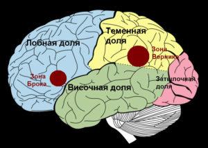 Виды афазий в неврологии