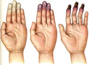 Синдром Рейно симптомы и лечение
