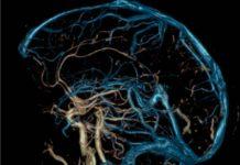 Ангиография сосудов головного мозга что это такое показания и противопоказания