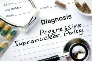 Прогрессивный паралич мозга